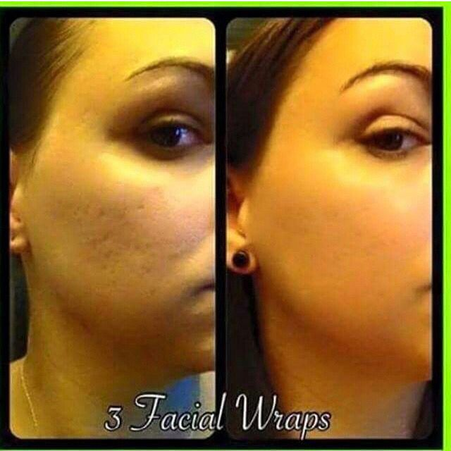 Results from our Facial Deep Hydration Mask. Looking Good! Thanks for sharing #itworks #deephydrationmask