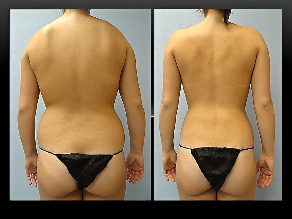 3c77cf6845 Waist Liposuction Before and After Photos