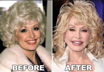 Celebrity Dolly Parton Plastic Surgery Before After - http://www.surgeryafter.com/celebrity-dolly-parton-plastic-surgery-before-after/?Pinterest