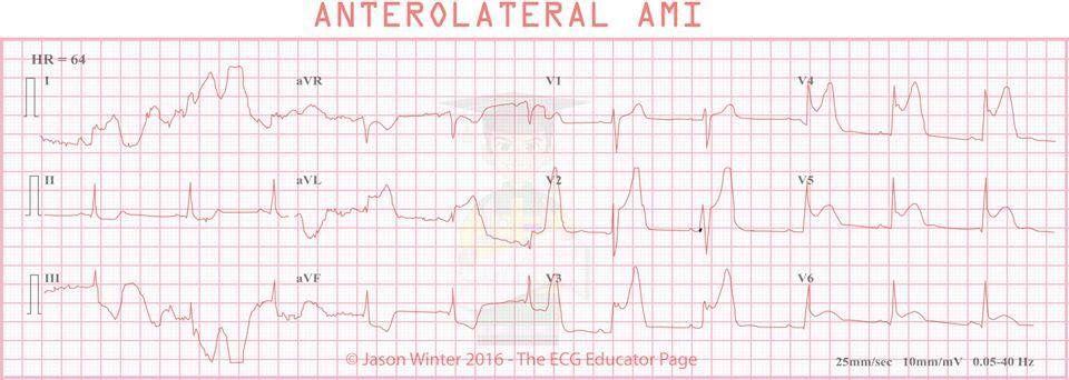 Pin by Jason Winter (ECG Educator). on 12Lead ECG/EKG