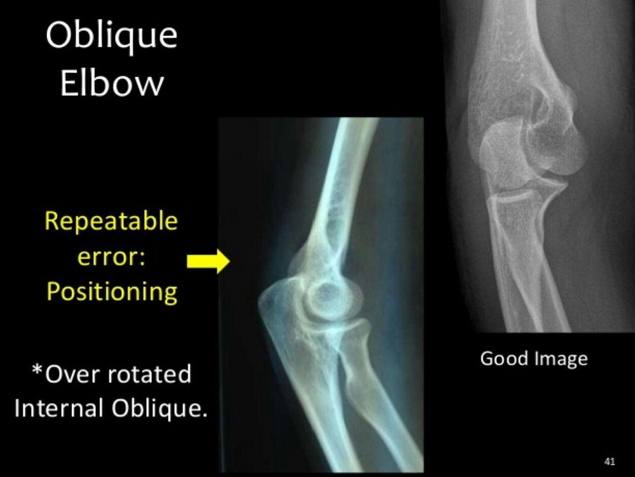 Internal oblique elbow | Rad tech | Pinterest | Rad tech and Radiology