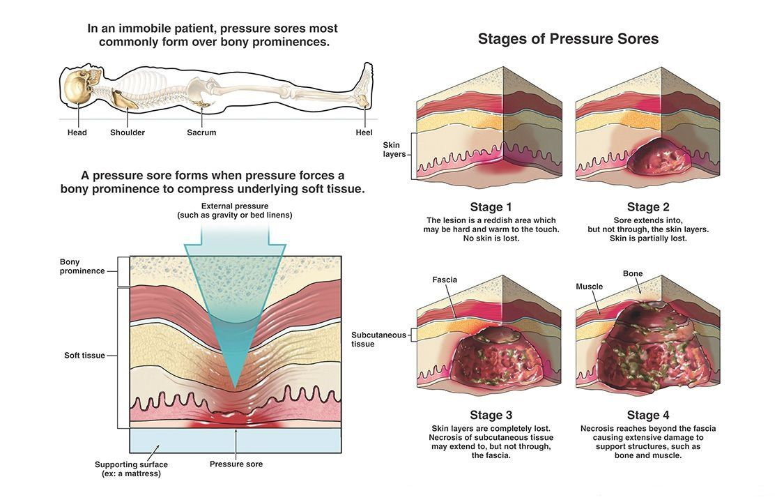 How to deal with pressure ulcers? Pressure ulcer, Wound