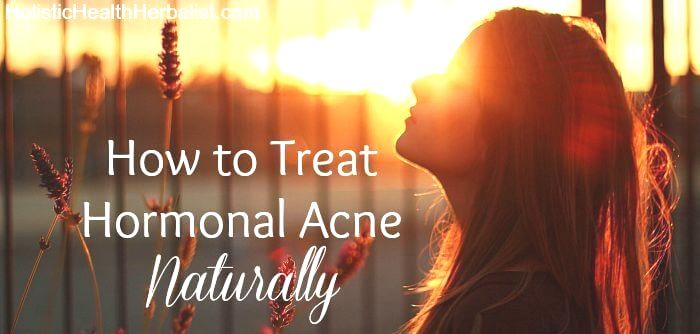 elimination diet for acne reddit hormonal zits therapy without birth control
