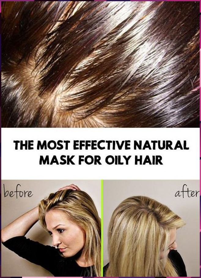 The Most Effective Natural Mask For Oily Hair In 2020 Oily Hair Remedies Oily Hair Greasy Hair Hairstyles