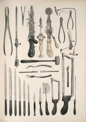 MEDICAL  PRINT EXAMPLES OF ARM AMPUTATION A3 POSTER ART PRINT ANTIQUE 19TH C