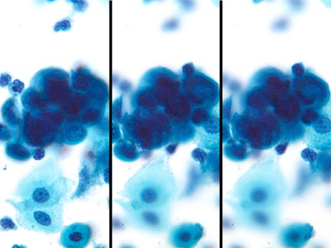 what are atypical glandular cells on pap smear