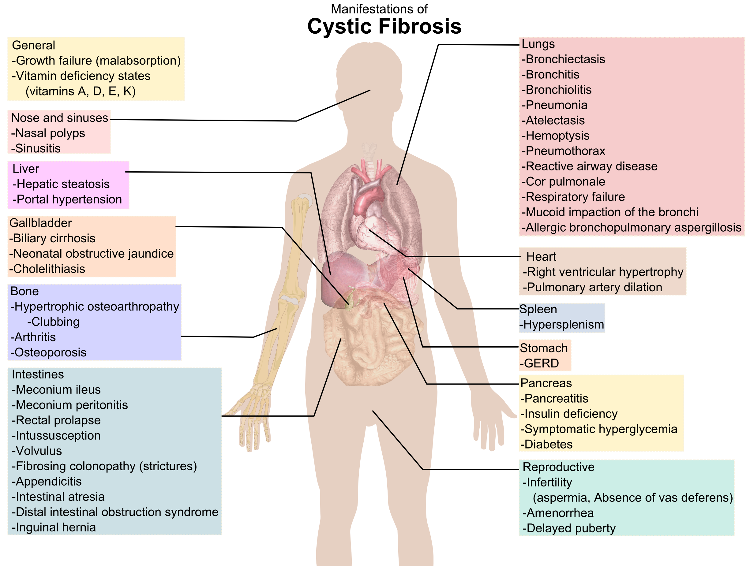 Cystic Fibrosis affects every part of the body. This diagram gives a ...