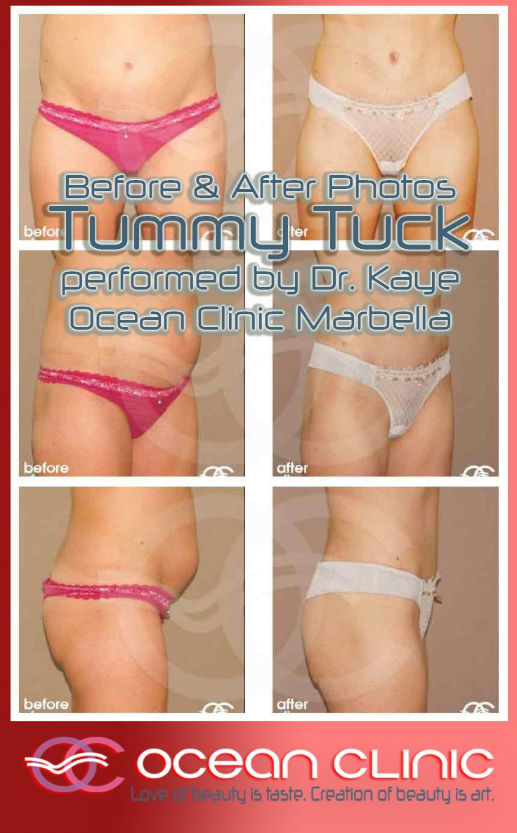 ABDOMINOPLASTY UMBILICAL HERNIA REPAIR Before and After