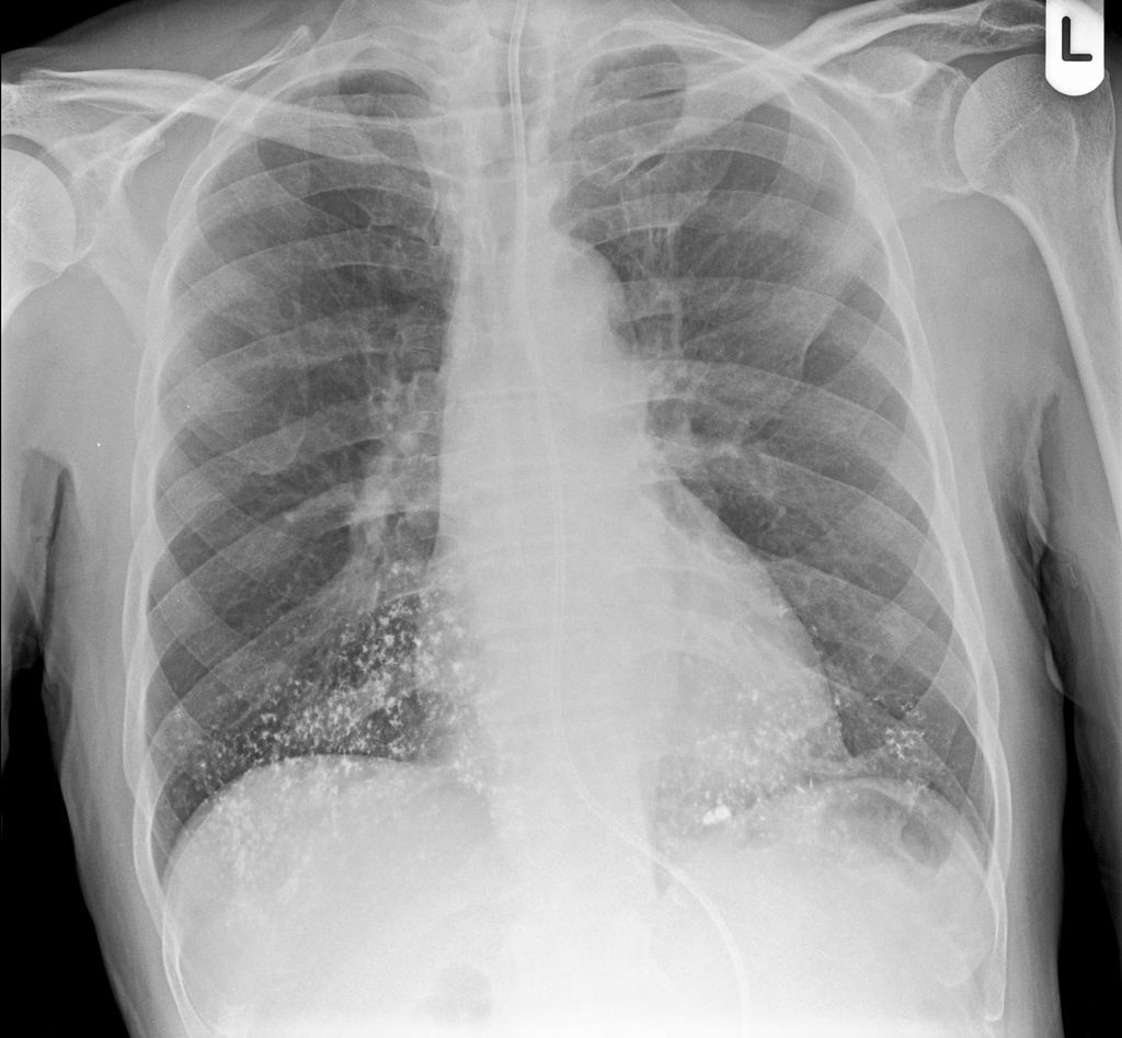 Normal Barium Swallow Lateral View Radiology Case Radiopaedia