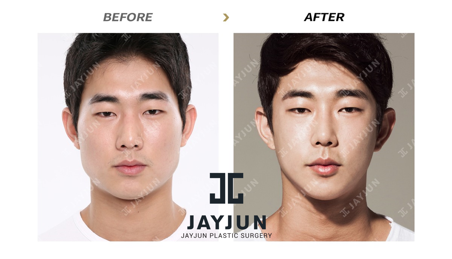 korean plastic surgery korea cosmetic surgery korean plastic surgery