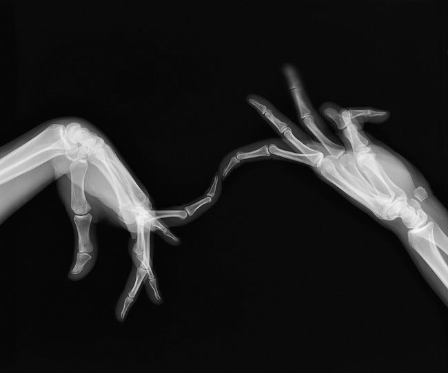 Artist uses hand x-rays to grasp meaning behind sc