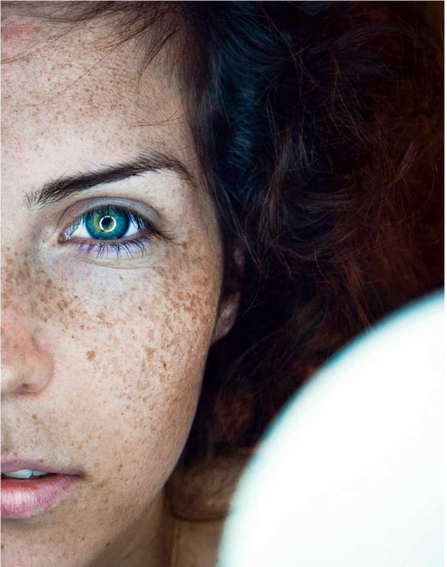 freckles freckles freckles <3