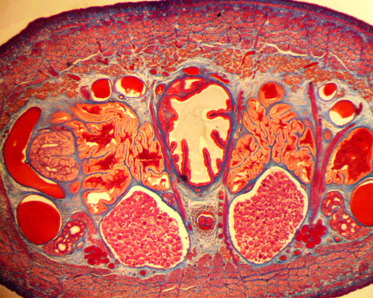 Hirudo medicinalis (Medicinal Leech) | Microscopy | Pinterest