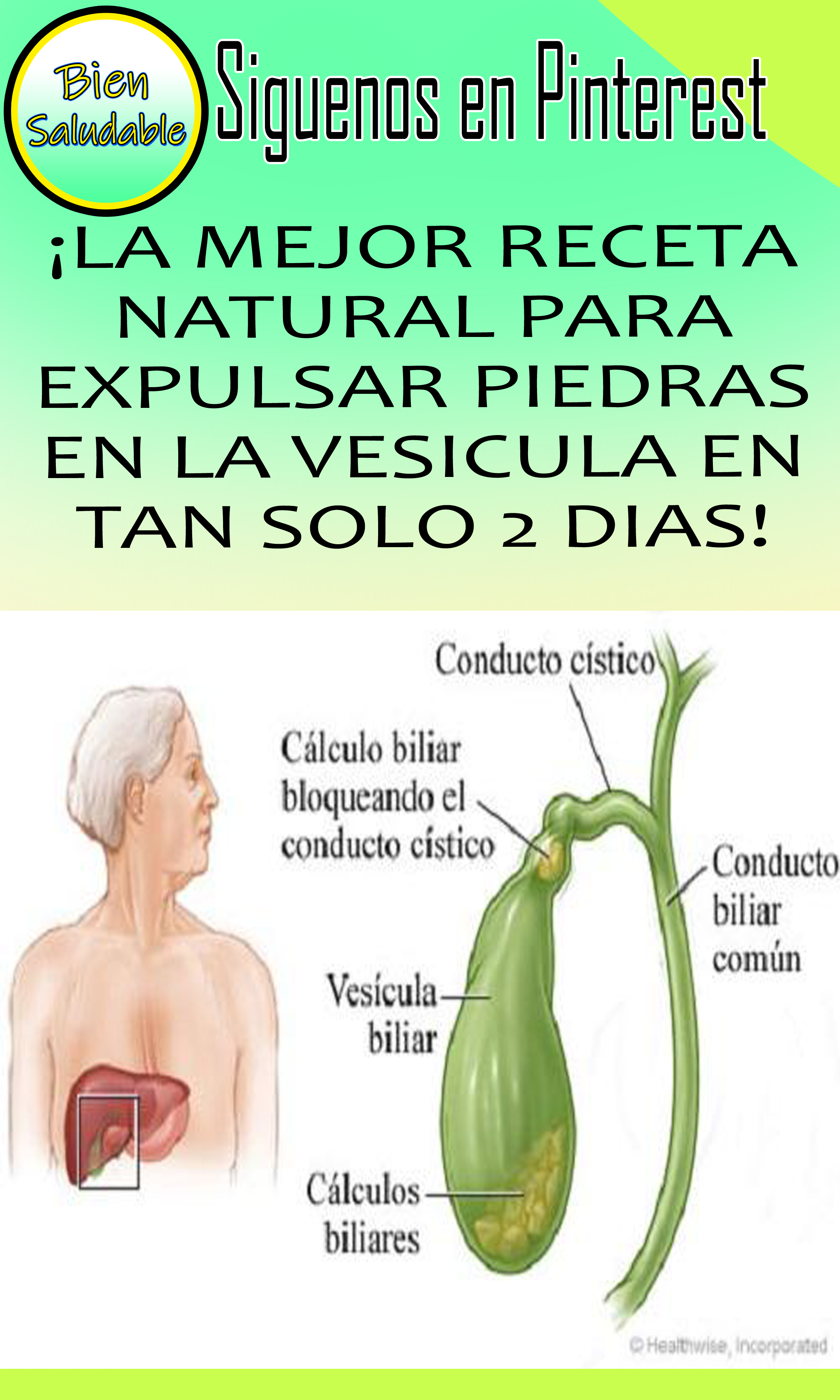 plantas para eliminar calculos de la vesicula