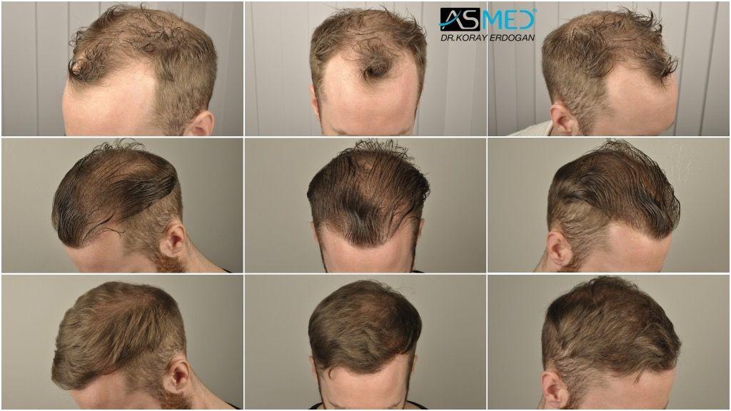 FUE Hair Transplant (Follicular Unit Extraction) ASMED