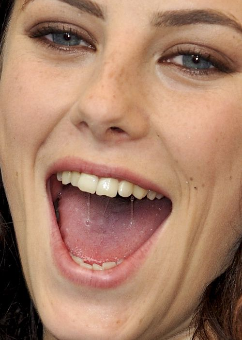 Yes Kristen stewart teeth recommend