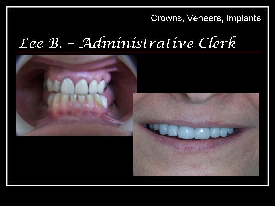 Cosmetic work, Crowns, Veneers, Implants Implants