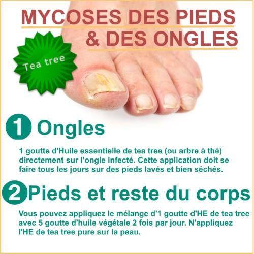 huile essentielle contre mycose ongle pied