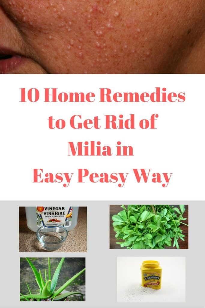 Home Remedy For Milia Cysts - Homemade Ftempo