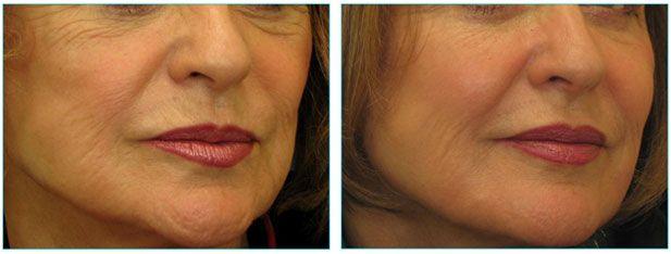 Scranton facial rejuvenation