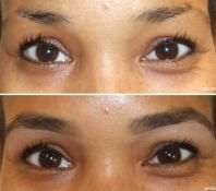 Latisse Eyebrow Growth Review | How to grow eyebrows ...