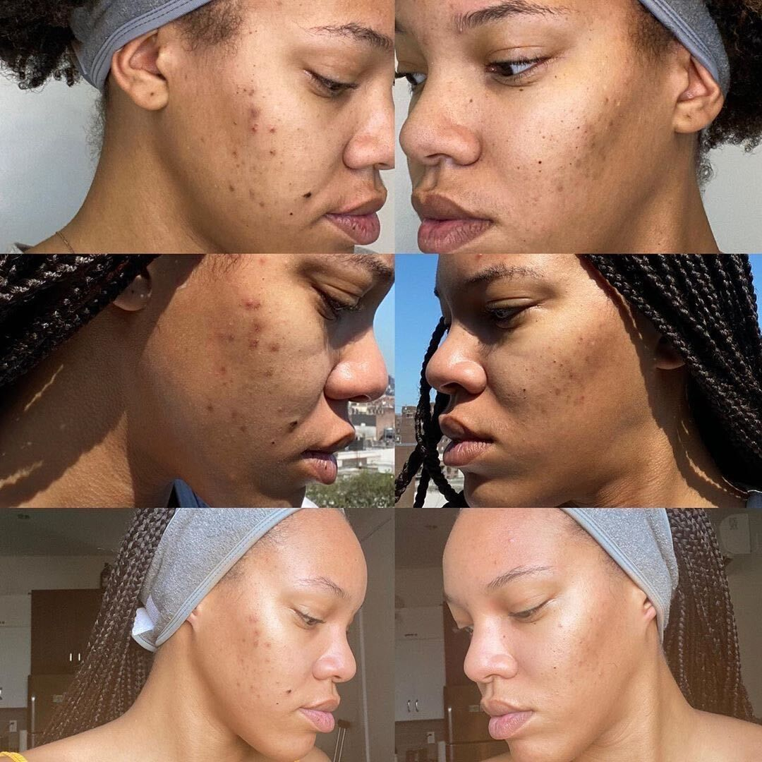 Urban Skin Rx Results In 2020 Medical Aesthetician Hyperpigmentation Skin Care
