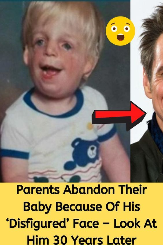 Parents Abandon Their Baby Because Of His 'Disfigu
