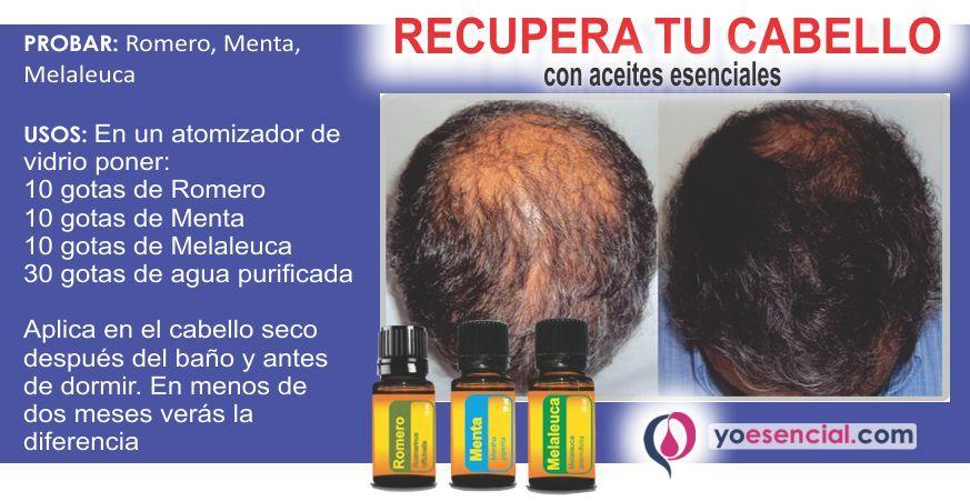 Perdida De Cabello Alopecia Aceites Esenciales Doterra Aceite