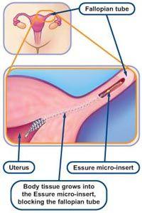 Essure Sterilization Body Tissues Urticaria