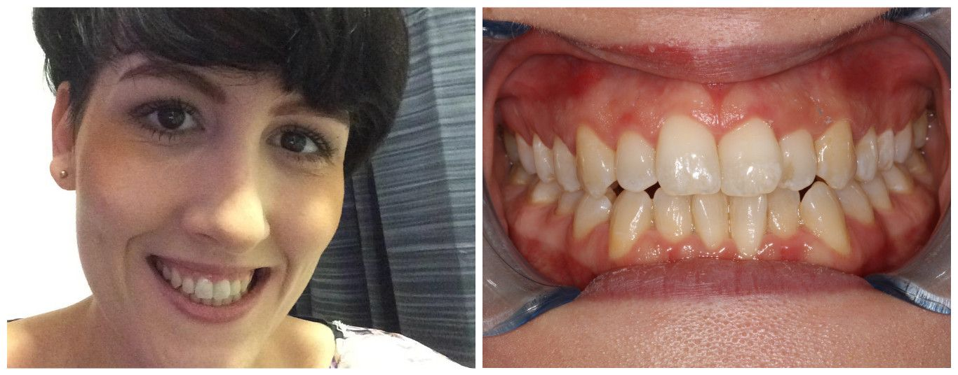 Before after results with images teeth straightening