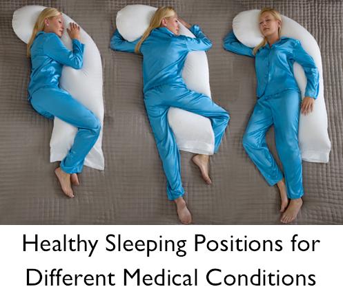 les 25 meilleures id es de la cat gorie positions de sommeil sur pinterest soulagement de la. Black Bedroom Furniture Sets. Home Design Ideas