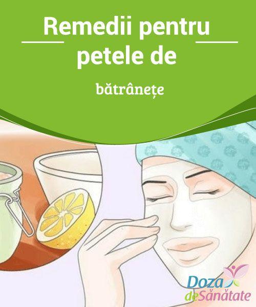 Medicamente varicoase și tratament