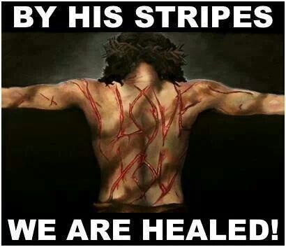 by His stripes and wounds, not mine, am I set free. <3