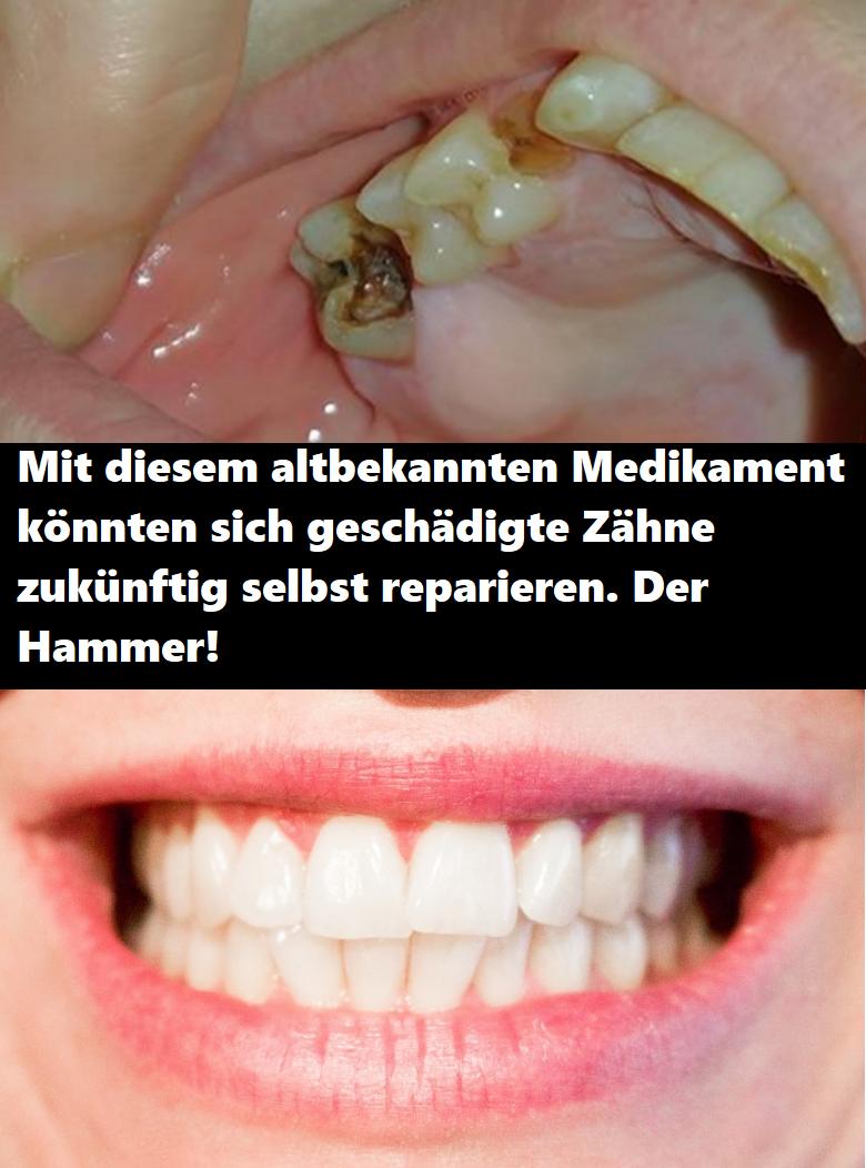 Zahn Selbst Reparieren