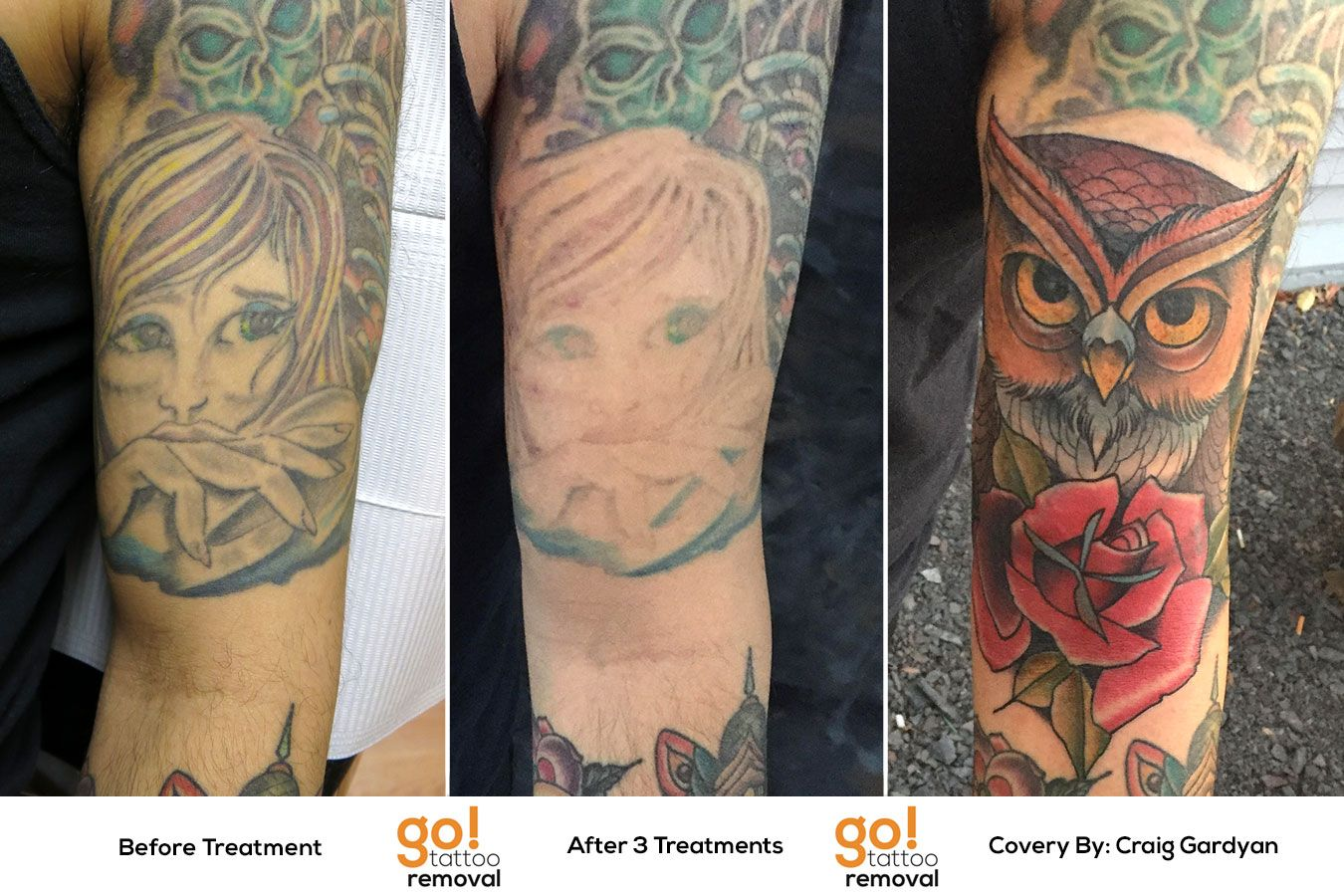 After Having Their Forearm Tattooed This Client Realized