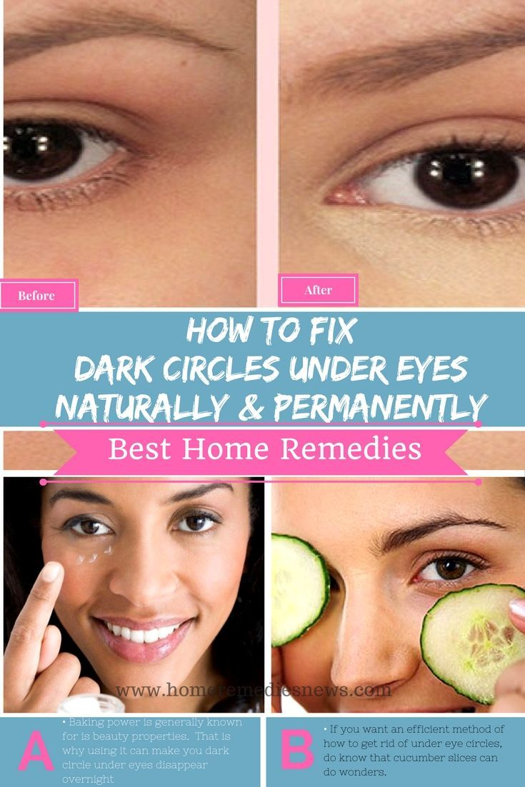 How to get rid of dark circle under eyes naturally and permanently ...