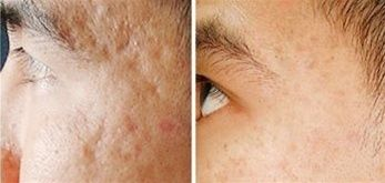 Pin On Before After Dermaroller Microneedling Treatment
