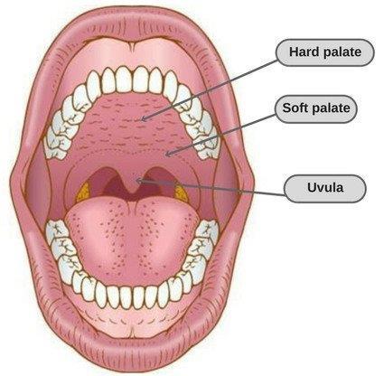 Pin by Safe Symptoms on Safe Symptoms   Tonsil stones, Stone, Remedies