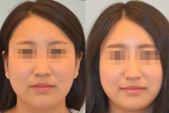 手術で永遠の笑みを 韓国で増える スマイル整形 ライフスタイル Pinterest Surgery Smile Lips