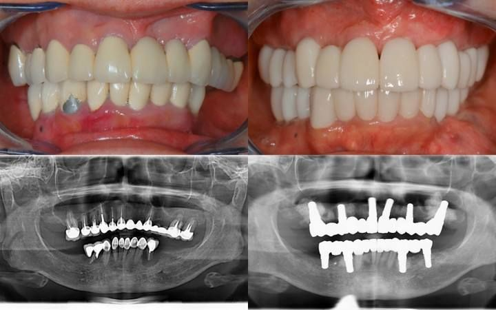T8595 Full Mouth Rehabilitation With Zirconia Implants Ceraroot Zirconia Dental Implant Implants Rehabilitation Dental Implants