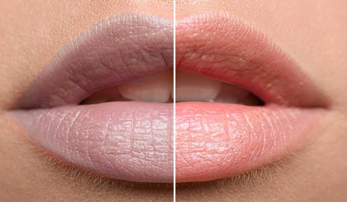 توريد الشفايف الداكنة كيف يتم بالخطوات وما هي تكلفته ا Lip Hair Dark Lips Pigmented Lips