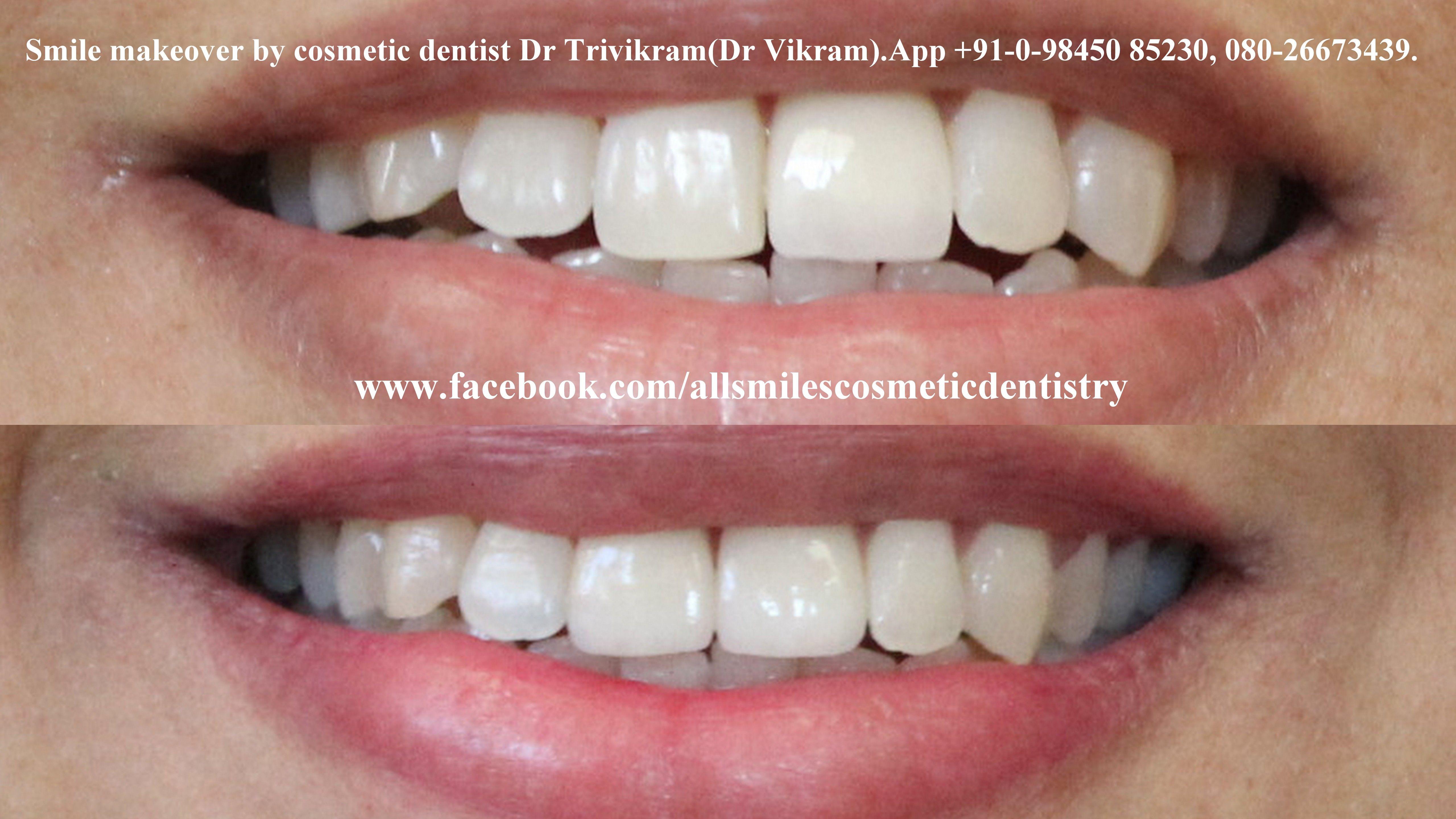Correction of oversized front crown.Dental smile makeover