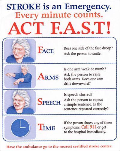 An Explanation For Detecting A Stroke Remember The Acronym