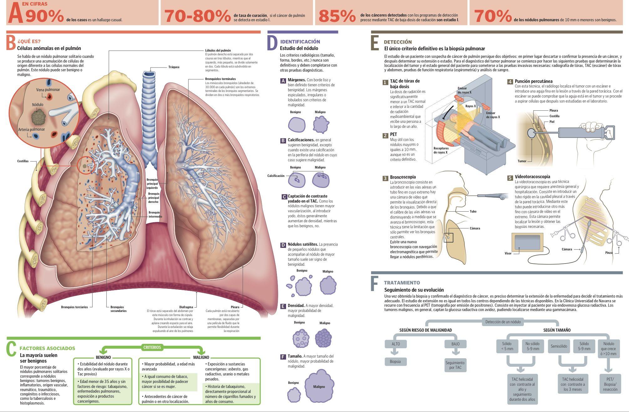 Pin de Senlly Nillzy en Anatomía físio   Pinterest   Anatomía y ...