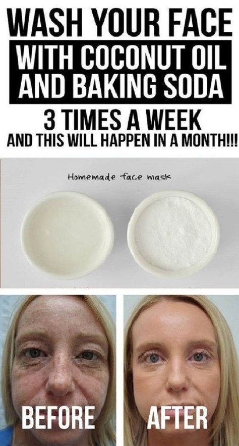 Wash Your Face with Coconut Oil and Baking Soda 3