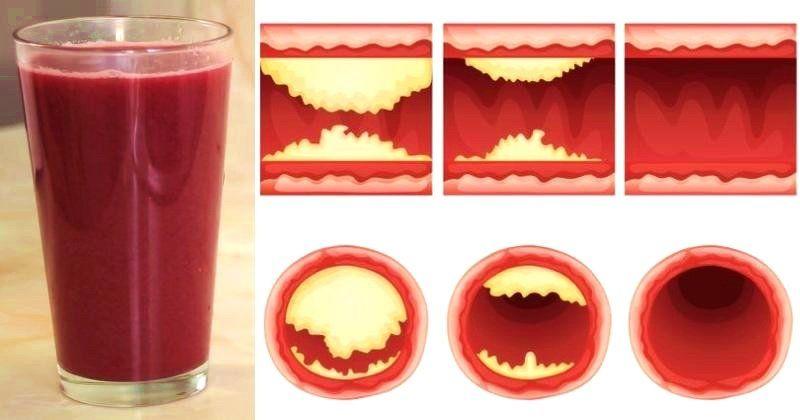Arterien Reinigen Medikament
