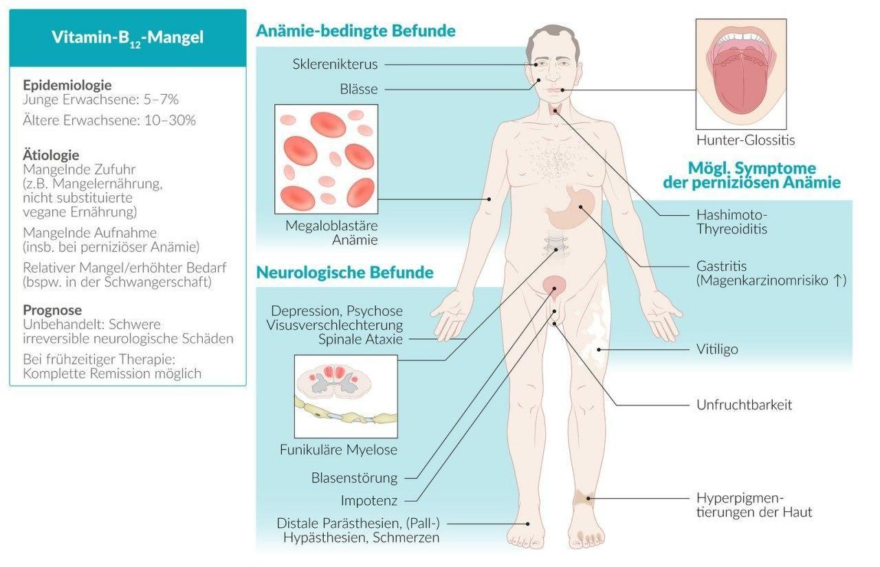symtom på anemi