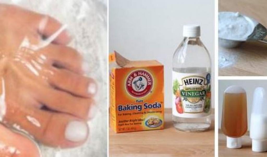 Mycose des ongles traitement naturel - Traitement naturel contre le salpetre ...