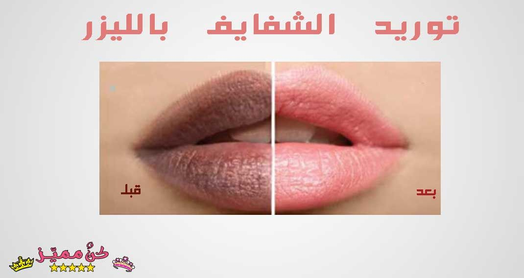 توريد الشفايف بالليزر تجربتي مع ليزر توريد الشفايف قبل و بعد Lip Laser My Experience With The Laser For Lips Before And After Lipstick Lips Beauty