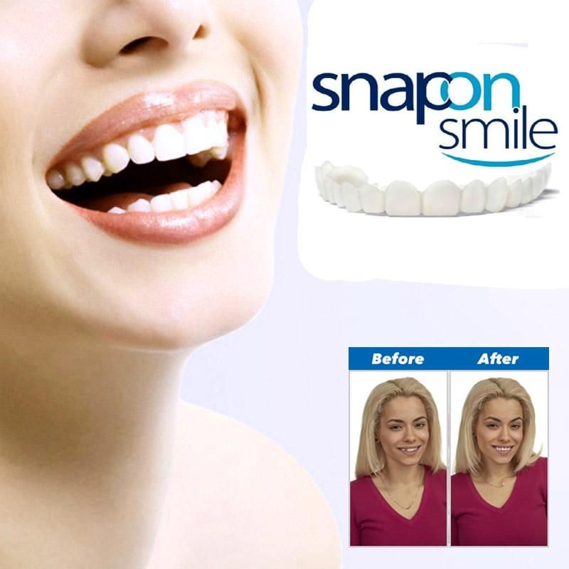 This Original Snap On Smile Veneers is a non-invasive